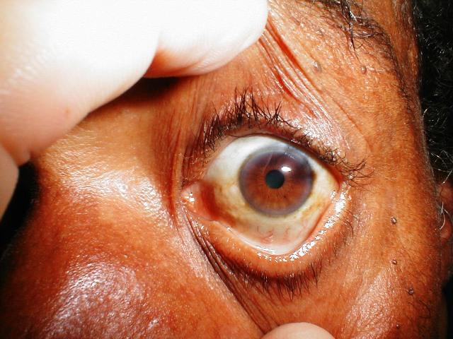 eyes_muddy_brown_sclera3.jpg